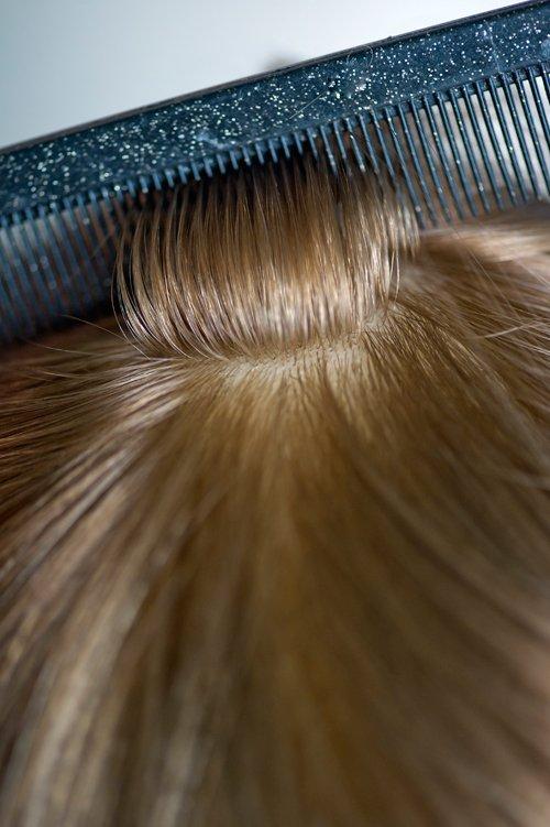 Uzupełnainie włosów system