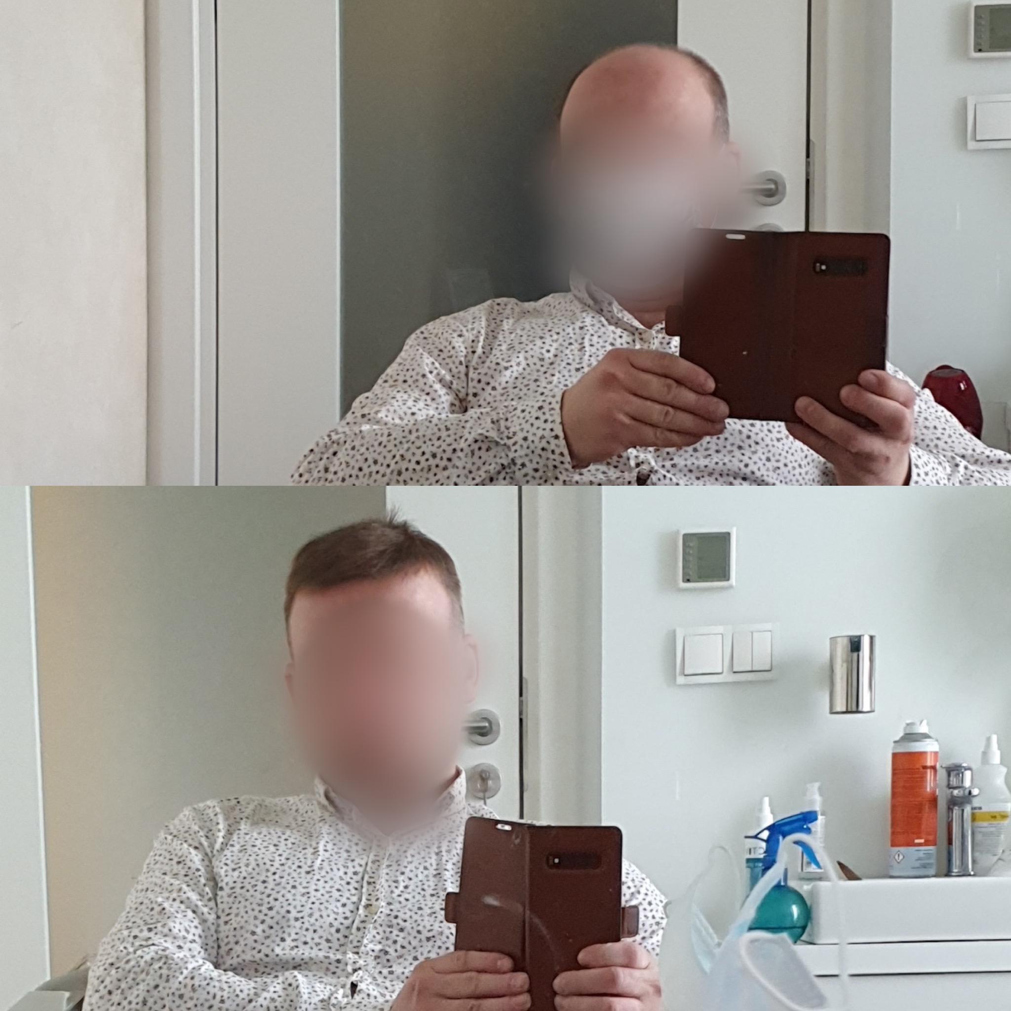 uzupelnianie-wlosow-dla-mezczyzn-hairlab-2