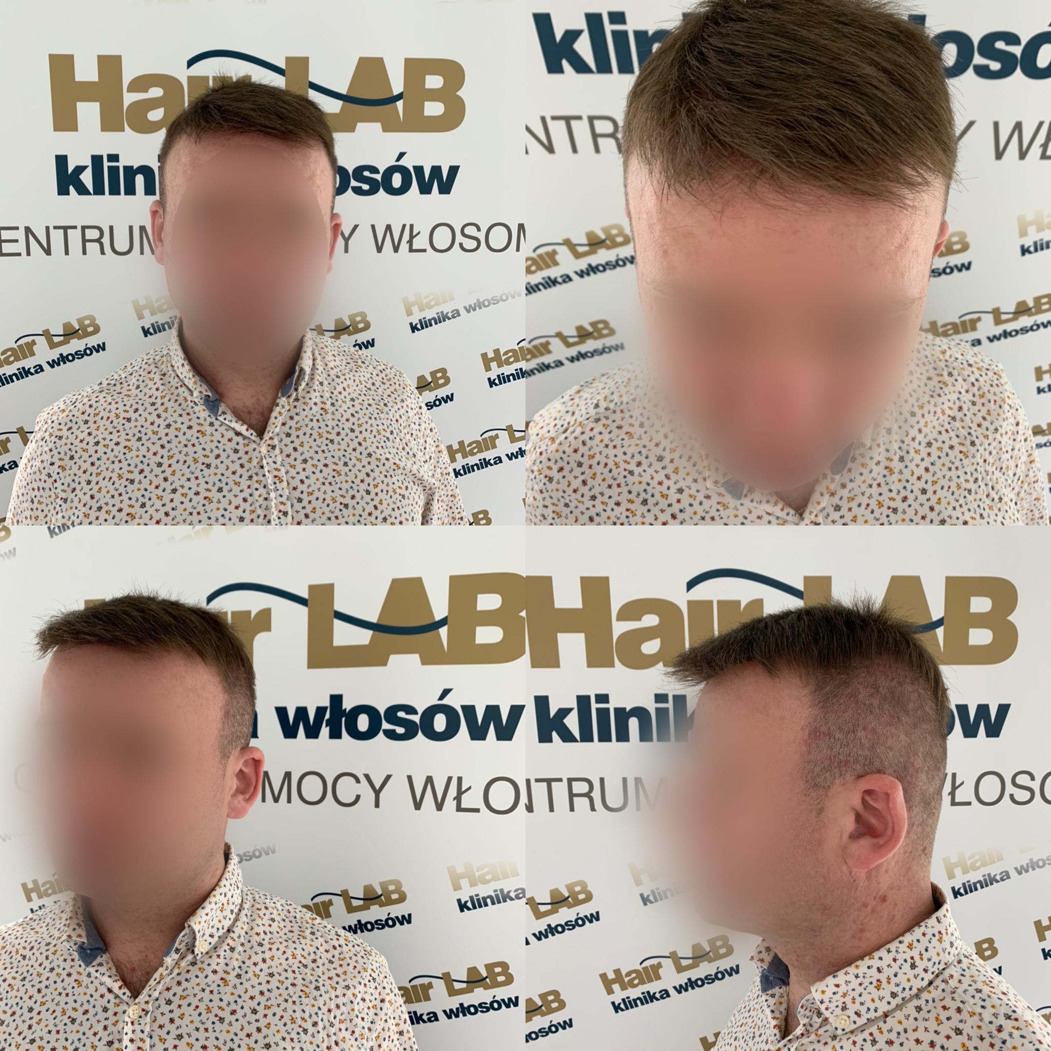 uzupelnianie-wlosow-dla-mezczyzn-hairlab
