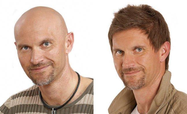 Uzupełnianie Włosów Dla Mężczyzn Klinika Włosów Hair Lab