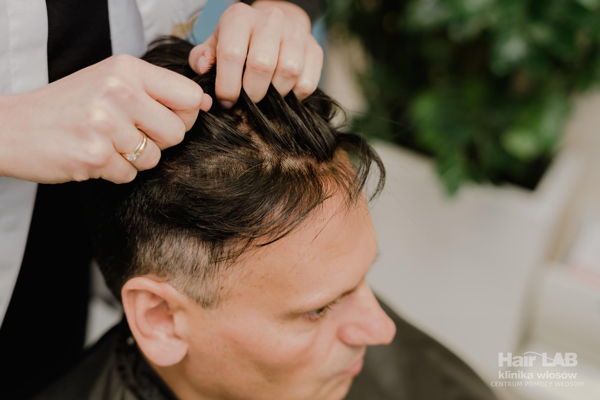 Tupety Męskie I Damskie Z Włosów Naturalnych Hair Lab